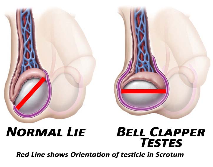 Testis lies in the scrotumt compared to a Normal Testis